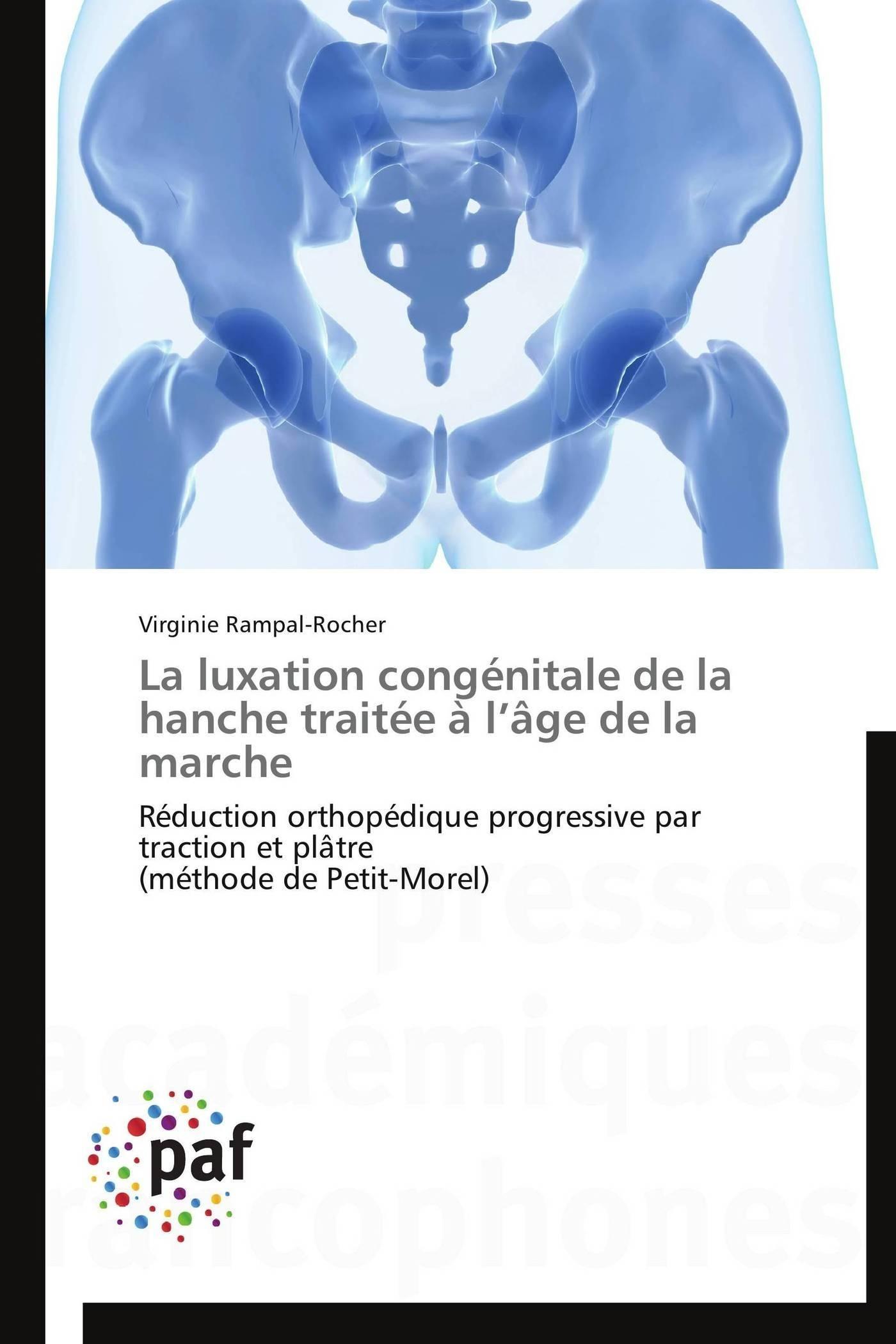 LA LUXATION CONGENITALE DE LA HANCHE TRAITEE A  L AGE DE LA MARCHE