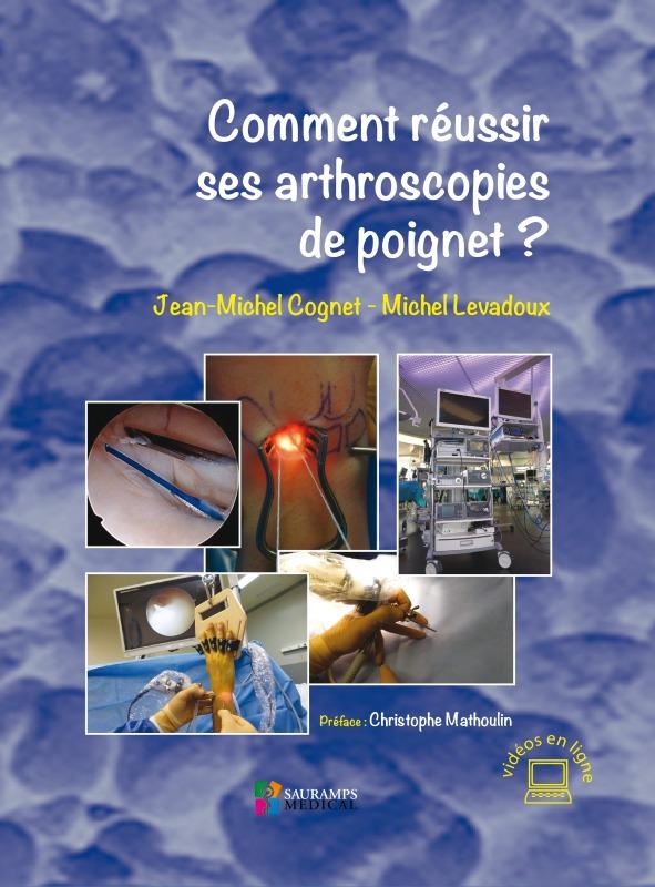 COMMENT REUSSIR SES ARTHROSCOPIES DE POIGNET ?