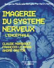 IMAGERIE DU SYSTEME NERVEUX. L'ENCEPHALE (2. ED.)