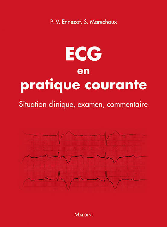 ECG EN PRATIQUE COURANTE - SITUATION CLINIQUE, INTERPRETATION, DECISION